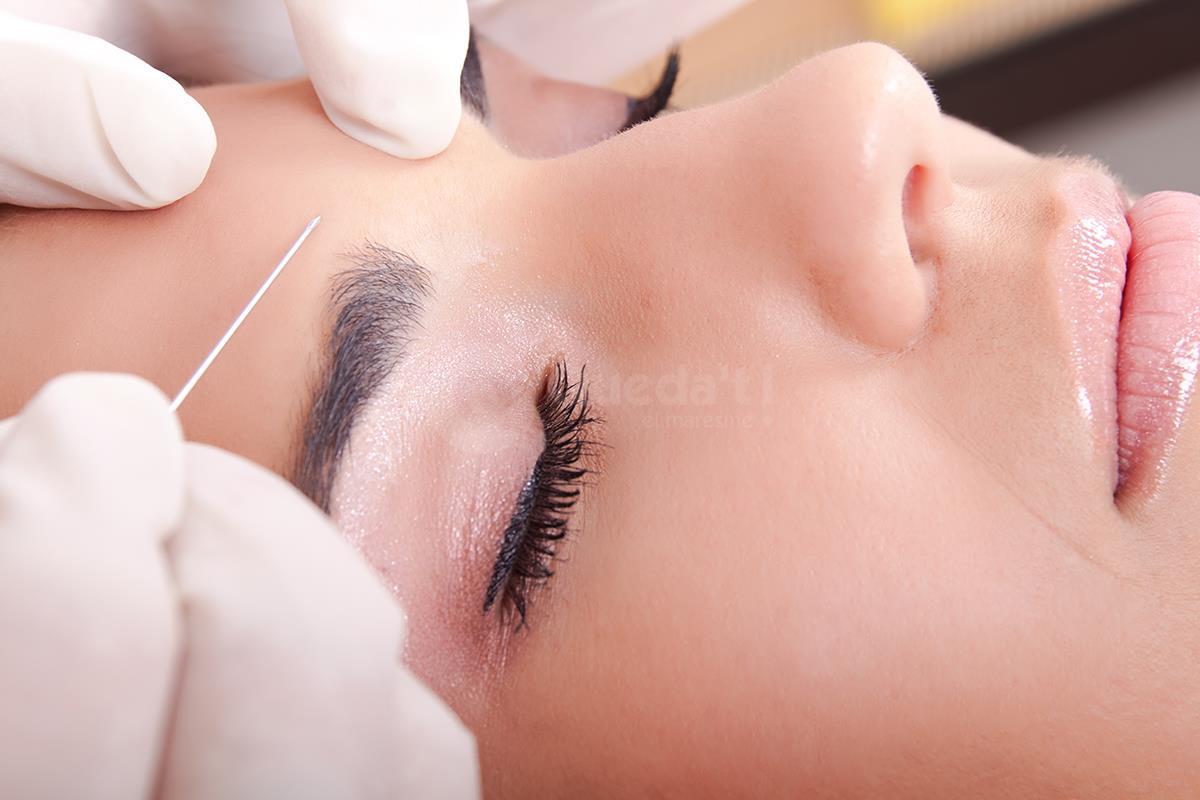 Botox Mataró